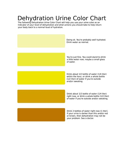 urine color chart 3